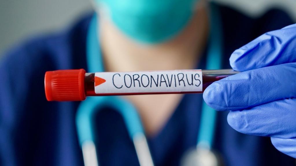 Определить коронавирус