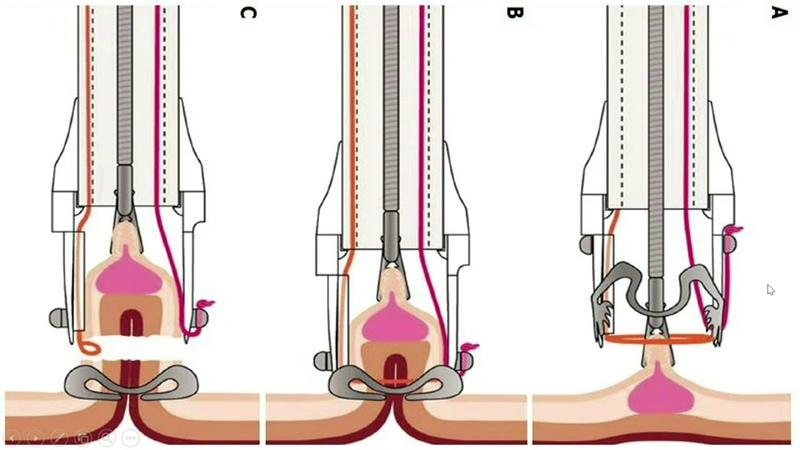 Воспалительные заболевания кишечника у мелких домашних животных Inflammatory Bowel Disease IBD in Small Animals