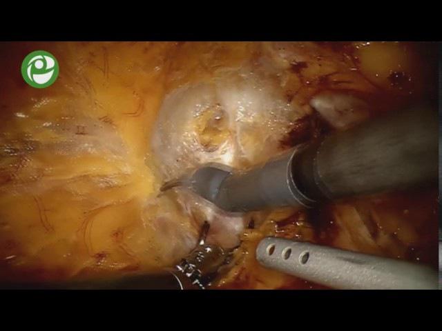Лапароскопическая роботизированная нервосберегающая радикальная простатэктомия