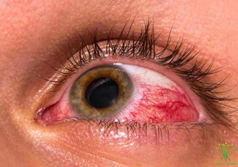 Картинки по запросу глаукома