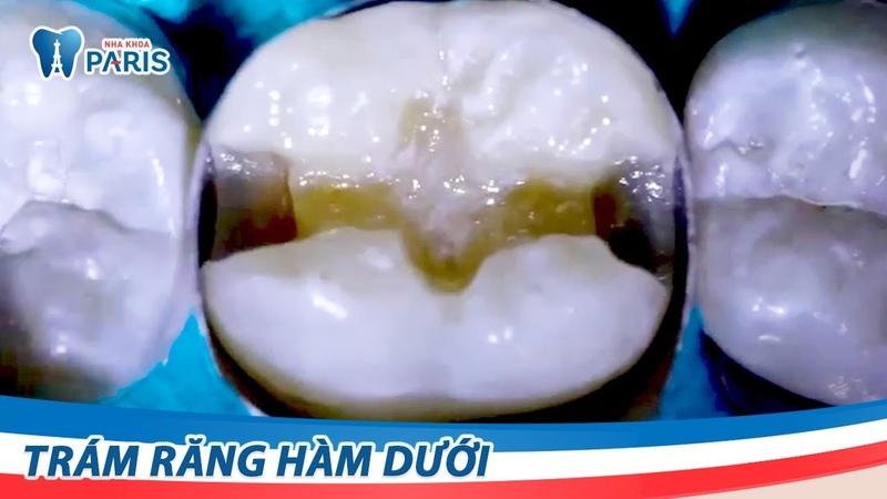 Trám răng hàm dưới bị sâu | Nha khoa Paris