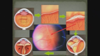 Retinopathy of prematurity. Офтальмохирург Сергиенко А.А. (Краснодар, Россия)