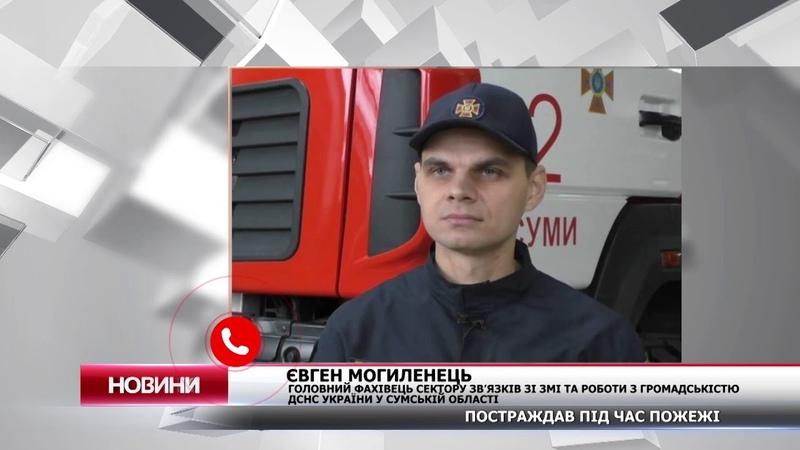 У пожежі на Кондратьєва постраждав дідусь