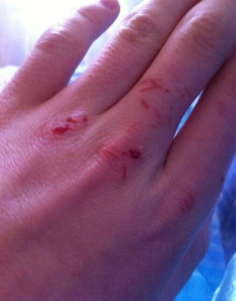 смену картинки разбитых женских рук вспоминаем самые позорные