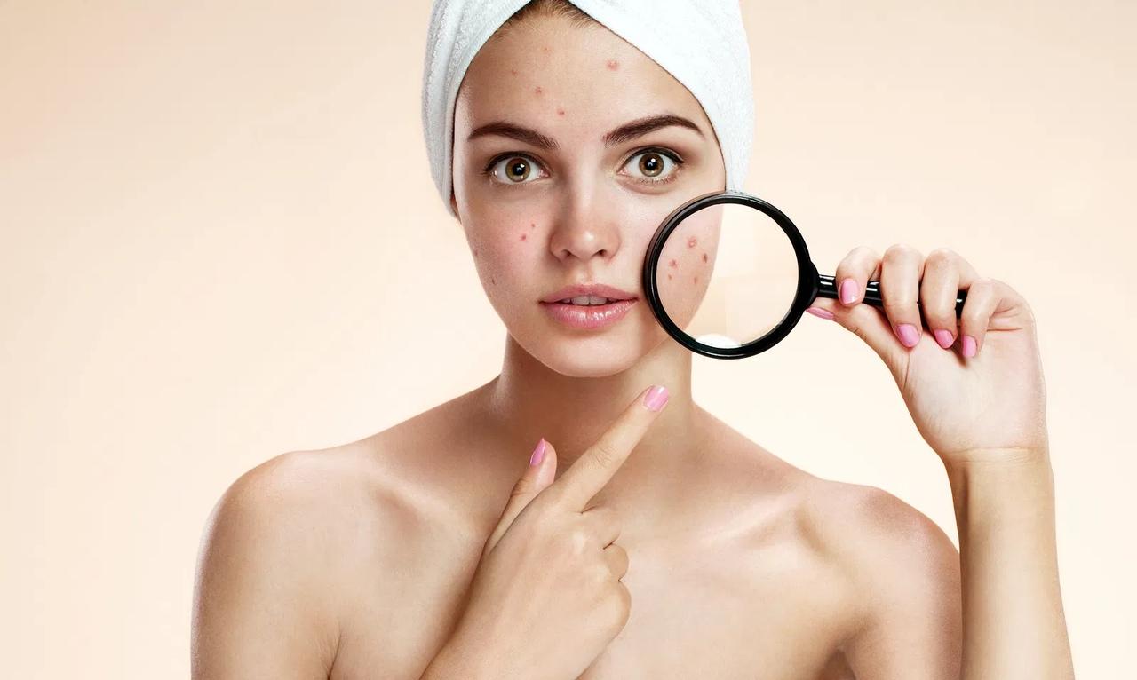 7 компонентов косметических средств, которые вызывают воспаление кожи и прыщи
