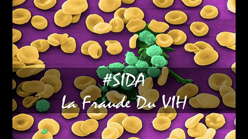 SIDA : LA FRAUDE DU VIH JOE LOWSAC.