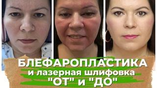 Блефаропластика и Лазерная шлифовка лица СО2 : Моя история, выбор врача , ДО и ПОСЛЕ , реабилитация
