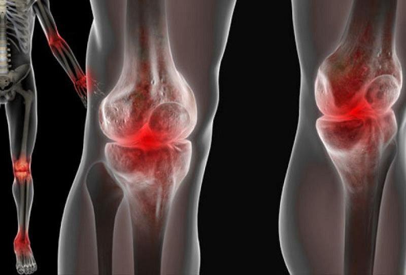 Как справиться с болью в суставах с помощью натуральных средств?