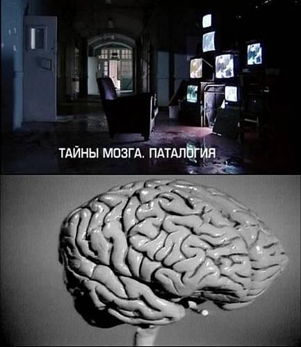 Документальные фильмы ВВС 1. Тайны мозга. Патология (2011)Мы изучаем все, наше тело не оставило уже белых пятен анатомия нам известна на отлично, но остается одна большая и важная загадка наш