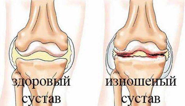 Отличный рецепт от боли в суставах