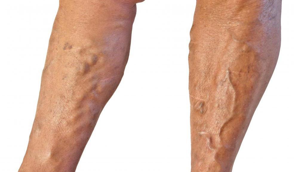Варикозное расширение вен можно удалить с помощью склеротерапии.